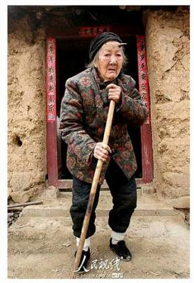 A una anciana china de 101 años le crece un cuerno negro de seis centímetros